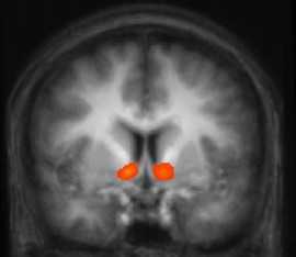 Brain scans show areas that respond to rewards.