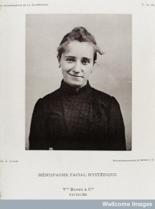 A 19th Century photograph showing spasms to the right side of a female face