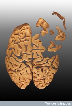 B0003253 Brain falling apart - artwork Credit: Heidi Cartwright. Wellcome Images images@wellcome.ac.uk http://wellcomeimages.org Photograph of the superior aspect of a human brain manipulated to represent the brain falling to pieces. Photograph - digitally modified 2000 Published:  -   Copyrighted work available under Creative Commons by-nc-nd 4.0, see http://wellcomeimages.org/indexplus/page/Prices.html